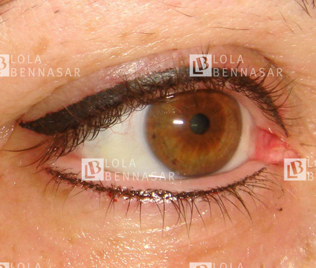 El servicio de socorro de los hinchazones bajo los ojos