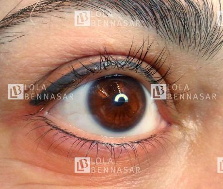 Los círculos violetas cuando cierras los ojos